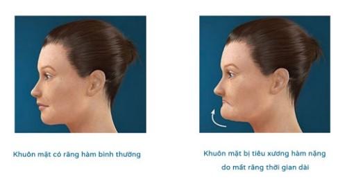 Quá trình tiêu xương hàm sau khi mất răng có nhanh không 5
