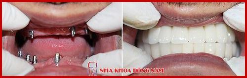 Quá trình tiêu xương hàm sau khi mất răng có nhanh không 8