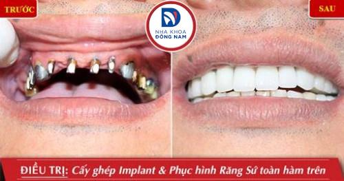 Quá trình tiêu xương hàm sau khi mất răng có nhanh không 9