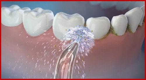 Răng bị nhét thức ăn thì phải làm sao 4