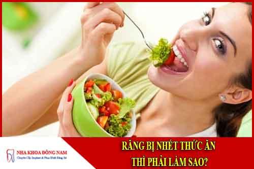Răng bị nhét thức ăn thì phải làm sao