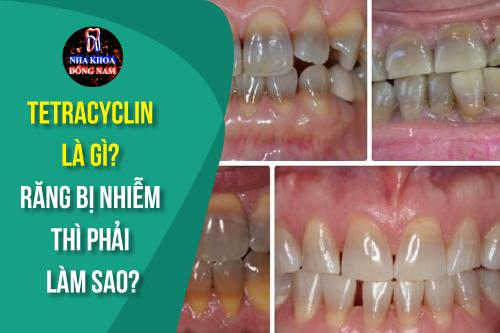 răng nhiễm tetracycline là gì