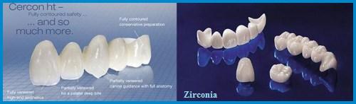 Răng sứ cercon và răng sứ zirconia giống nhau hay khác nhau 1