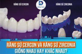 Răng Sứ Cercon Và Răng Sứ Zirconia Giống Nhau Hay Khác Nhau?