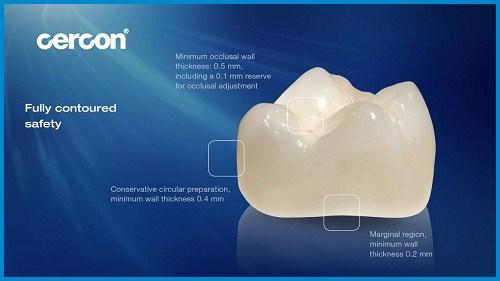 Răng sứ cercon và răng sứ zirconia giống nhau hay khác nhau 2