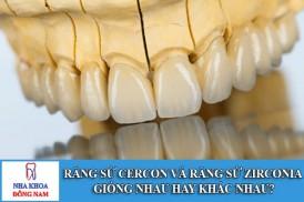 Răng sứ cercon và răng sứ zirconia giống nhau hay khác nhau