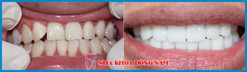 Răng sứ cercon và răng sứ zirconia giống nhau hay khác nhau 7