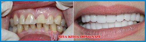 Răng sứ cercon và răng sứ zirconia giống nhau hay khác nhau 8