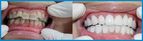 Răng sứ cercon và răng sứ zirconia giống nhau hay khác nhau 9