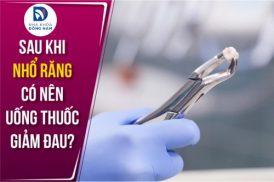 Sau Khi Nhổ Răng có nên uống thuốc giảm đau