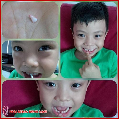 Sau nhổ răng có nên uống thuốc giảm đau 10