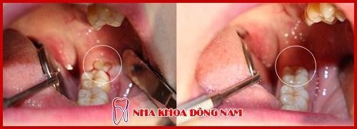 Sau nhổ răng có nên uống thuốc giảm đau 8