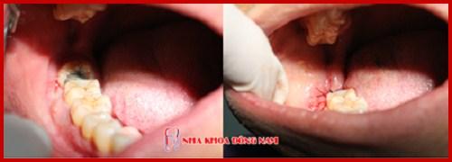 Sau nhổ răng có nên uống thuốc giảm đau 9