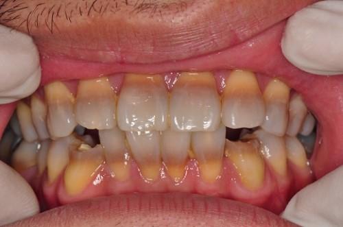Răng Bị Nhiễm Tetracyclin