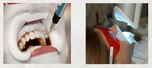 Thuốc tẩy trắng răng như thế nào là tốt nhất 2