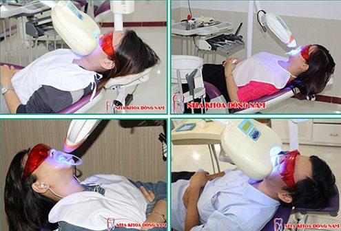 Thuốc tẩy trắng răng như thế nào là tốt nhất