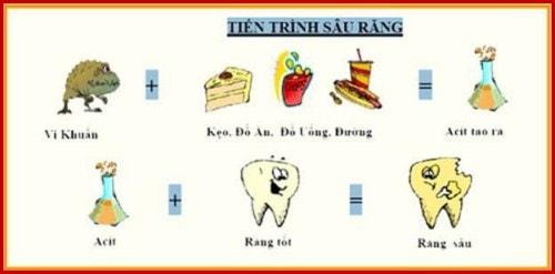 Trám răng bị sâu bao nhiêu tiền 1