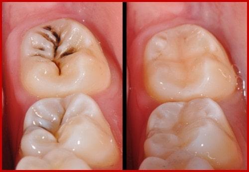 Trám răng bị sâu bao nhiêu tiền 2