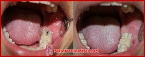 Trám răng bị sâu bao nhiêu tiền 3