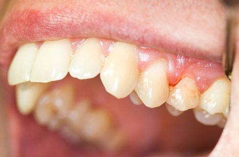 Vì sao bị đau nướu răng 1