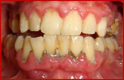 Vì sao bị đau nướu răng 2