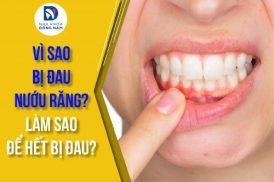vì sao bị đau nướu răng?làm sao để hết bị đau?