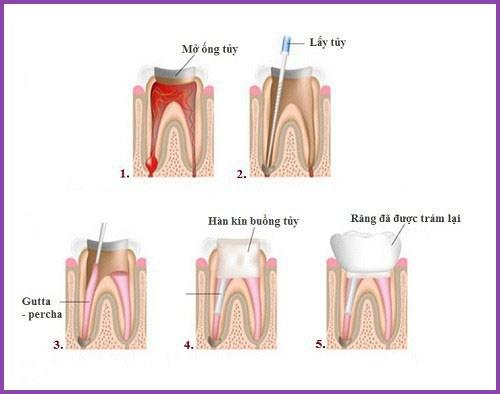 Alo bác sĩ - Giải đáp các câu hỏi về lấy tủy răng 1