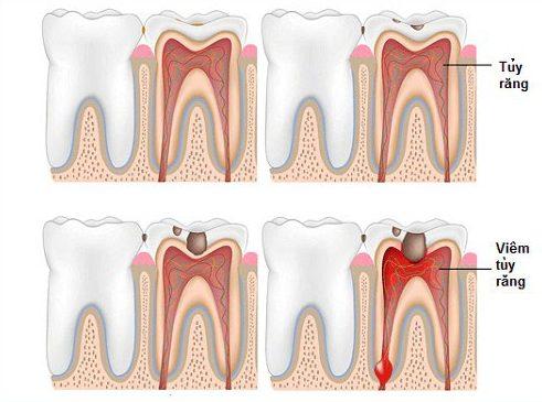 Alo bác sĩ - Giải đáp các câu hỏi về lấy tủy răng 2