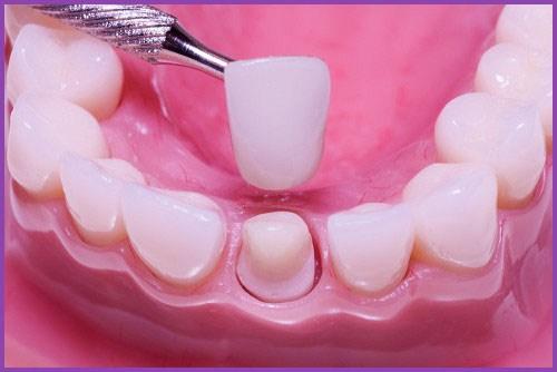 Alo bác sĩ - Giải đáp các câu hỏi về lấy tủy răng 3
