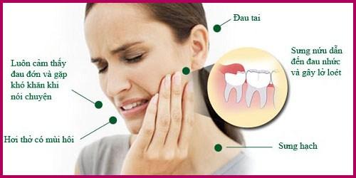 Alo bác sĩ - Giải đáp các câu hỏi về nhổ răng 2