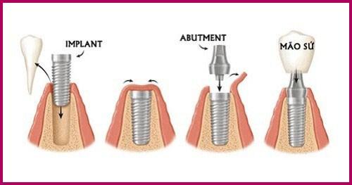 Alo bác sĩ - Giải đáp các câu hỏi về nhổ răng 4