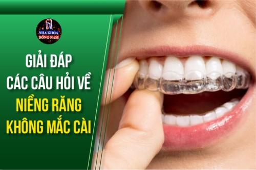 Giải Đáp Các Câu Hỏi Về Niềng Răng Không Mắc Cài