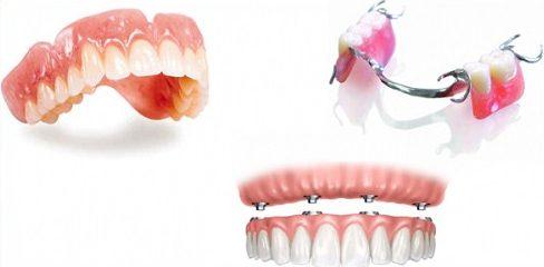 Alo bác sĩ - Giải đáp các câu hỏi về răng giả tháo lắp1