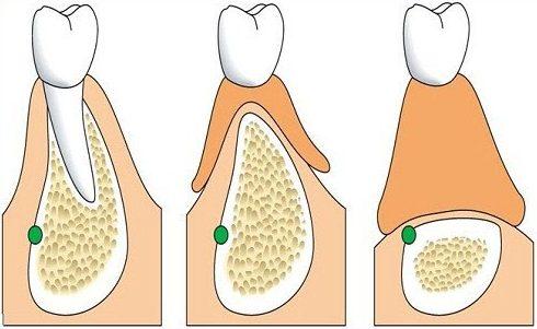 Alo bác sĩ - Giải đáp các câu hỏi về răng giả tháo lắp 2