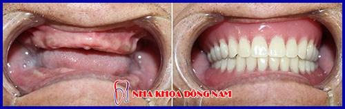 Alo bác sĩ - Giải đáp các câu hỏi về răng giả tháo lắp 4