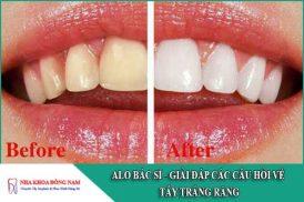giải đáp các câu hỏi về tẩy trắng răng