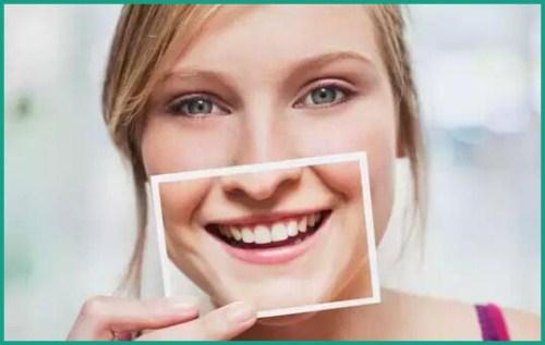 Alo bác sĩ - giải đáp các cau hỏi về tẩy trắng răng 4
