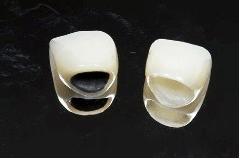 Alo bác sĩ - giải đáp các cau hỏi về tẩy trắng răng 5