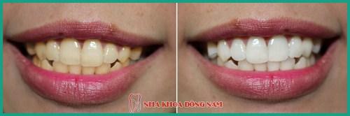 Alo bác sĩ - giải đáp các cau hỏi về tẩy trắng răng 6