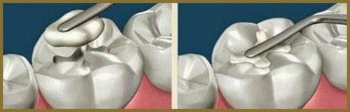 Alo bác sĩ - Giải đáp các câu hỏi vê trám răng1