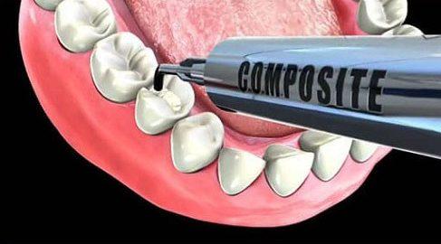 Alo bác sĩ - Giải đáp các câu hỏi vê trám răng 2