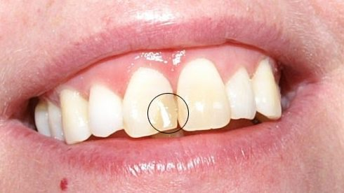 Alo bác sĩ - Giải đáp các câu hỏi vê trám răng 4