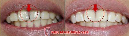 Alo bác sĩ - Giải đáp các câu hỏi vê trám răng 5