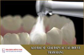 giải đáp các câu hỏi về trám răng
