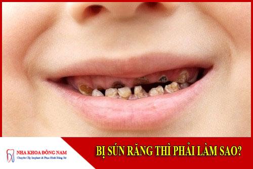 Bị sún răng thì phải làm sao