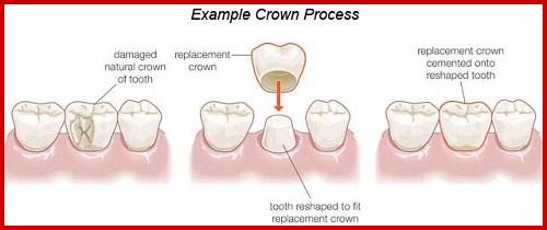 Bọc răng sứ hi-zirconia cho hàm răng ố vàng và lộn xộn 1