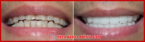 Bọc răng sứ hi-zirconia cho hàm răng ố vàng và lộn xộn 2