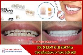 Bọc răng sứ hi-zirconia cho hàm răng ố vàng và lộn xộn