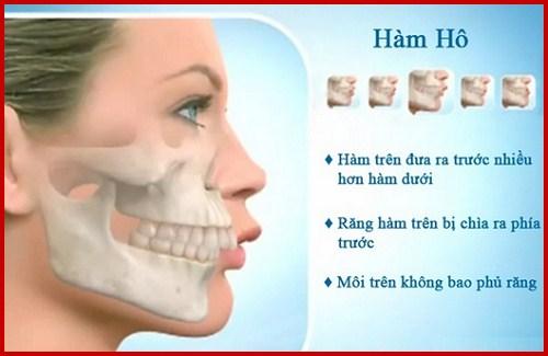 Bọc răng sứ khắc phục răng bị hô 1