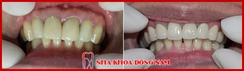 Bọc răng sứ khắc phục răng bị hô 2